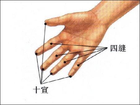 四缝-体表示意图