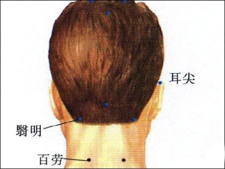 耳尖-体表示意图
