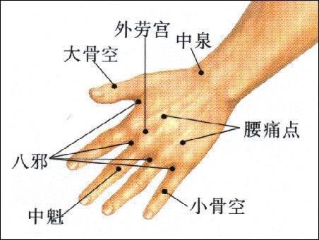 腰痛点-体表示意图
